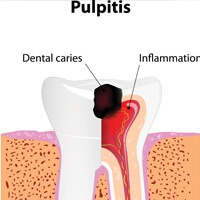 Diagram of teeth and pulpitis