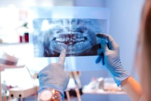 dental professional reviewing image