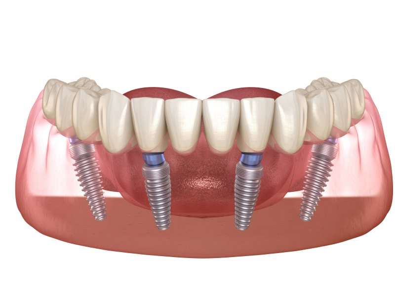 Four dental implants supporting a full denture