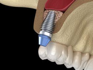 Model showing the basics of dental implants